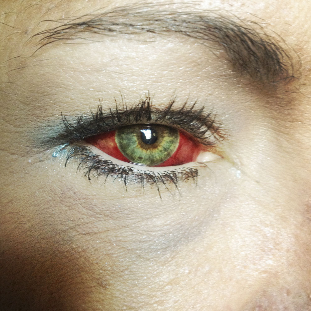 Makeup disguises a fractured eye, as she prepares to board a train home. After a night of heavy drinking